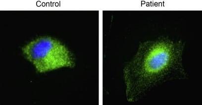 Immunocytochemistry/ Immunofluorescence - Anti-Insulin Receptor beta antibody [18-44] (ab983)