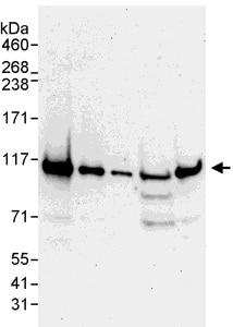 Western blot - Anti-Rad21 antibody (ab992)