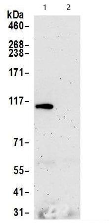 Immunoprecipitation - Anti-Rad21 antibody (ab992)