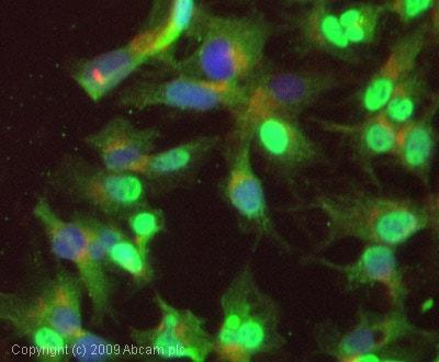 Immunocytochemistry/ Immunofluorescence - Anti-Glucose 6 Phosphate Dehydrogenase antibody (ab993)
