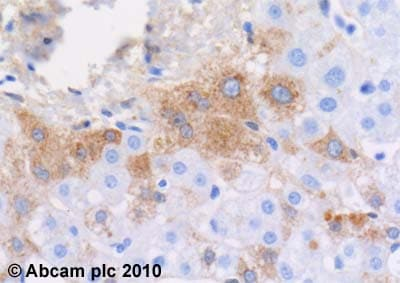 Immunohistochemistry (Formalin/PFA-fixed paraffin-embedded sections) - Anti-Plasma Kallikrein 1B antibody [13G11] (ab1006)