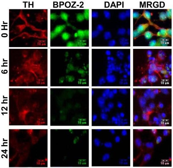Immunocytochemistry/ Immunofluorescence - Anti-BPOZ/ABTB1 antibody (ab1077)
