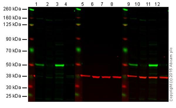 Western blot - Anti-p53 antibody [DO-1] - ChIP Grade (ab1101)