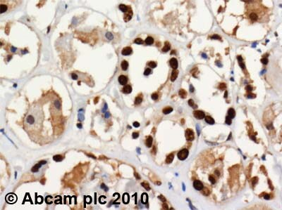 Immunohistochemistry (Formalin/PFA-fixed paraffin-embedded sections) - Anti-SET/TAF-I antibody (ab1183)