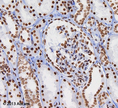 Immunohistochemistry (Formalin/PFA-fixed paraffin-embedded sections) - Anti-Histone H3 (di methyl K9) antibody [mAbcam 1220] - ChIP Grade (ab1220)
