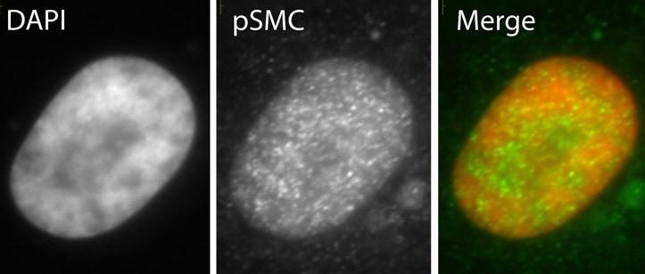 Immunocytochemistry - Anti-SMC1 (phospho S966) antibody (ab1276)