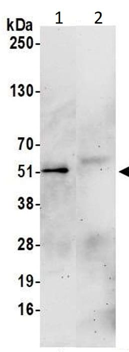 Immunoprecipitation - Anti-Aurora A antibody - Centrosome Marker (ab1287)
