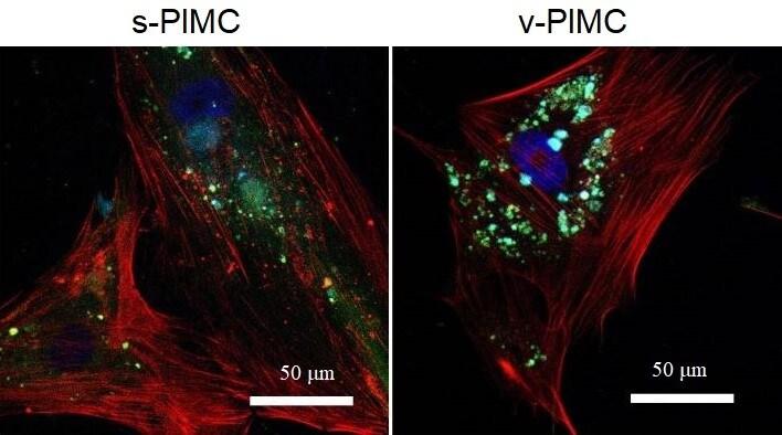 Immunocytochemistry/ Immunofluorescence - Anti-VEGFA antibody [VG-1] (ab1316)