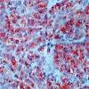 Immunohistochemistry (Formalin/PFA-fixed paraffin-embedded sections) - Anti-CD63 antibody [NK1/C3] (ab1318)