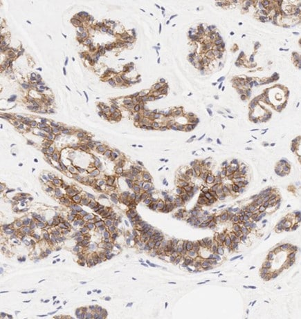 Immunohistochemistry (Formalin/PFA-fixed paraffin-embedded sections) - Anti-E Cadherin antibody [HECD-1] (ab1416)