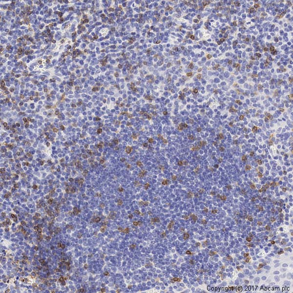 Immunohistochemistry (Formalin/PFA-fixed paraffin-embedded sections) - Anti-CCR4 antibody (ab1669)