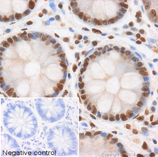 Immunohistochemistry (Formalin/PFA-fixed paraffin-embedded sections) - Anti-Histone H2A (acetyl K5) antibody - ChIP Grade (ab1764)