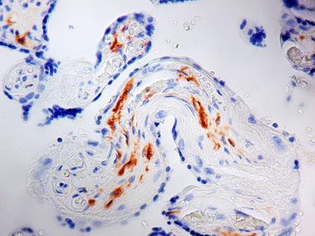 Immunohistochemistry (Formalin/PFA-fixed paraffin-embedded sections) - Anti-Factor XIIIa antibody [AC-1A1] (ab1834)