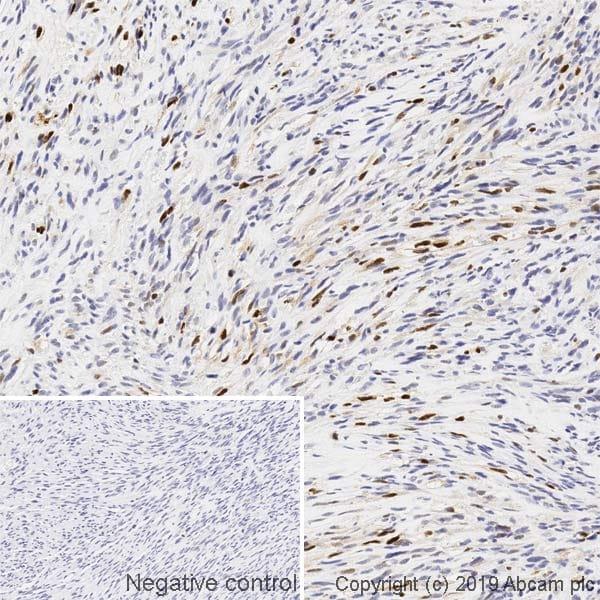 Immunohistochemistry (Formalin/PFA-fixed paraffin-embedded sections) - Anti-Myogenin antibody [F5D] (ab1835)