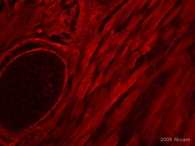 Immunohistochemistry (PFA perfusion fixed frozen sections) - Anti-Myogenin antibody [F5D] (ab1835)