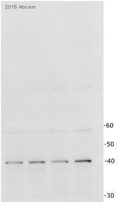 Western blot - Anti-Apolipoprotein E antibody [D6E10] (ab1906)