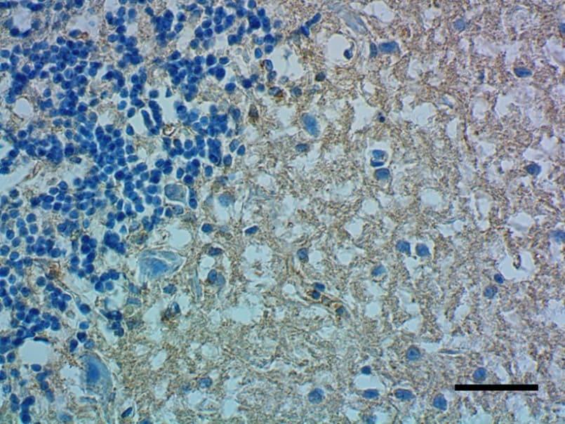 Immunohistochemistry (Formalin/PFA-fixed paraffin-embedded sections) - Anti-Apolipoprotein E antibody [D6E10] (ab1906)