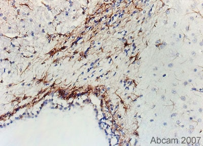 Immunohistochemistry (Formalin/PFA-fixed paraffin-embedded sections) - Anti-GFAP antibody [GF5] (ab10062)