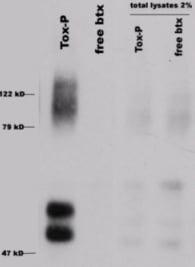 Western blot - Anti-Nicotinic Acetylcholine Receptor alpha 7 antibody (ab10096)