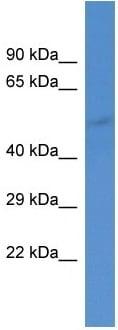 Western blot - Anti-GABA A Receptor alpha 5/GABRA5 antibody (ab10098)