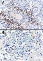 Immunohistochemistry (Formalin/PFA-fixed paraffin-embedded sections) - Anti-SH3BP1 antibody (ab10103)