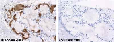 Immunohistochemistry (Formalin/PFA-fixed paraffin-embedded sections) - Anti-Lactoferrin antibody [2B8] (ab10110)