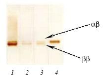 Western blot - Anti-S100 antibody [6G1] (HRP) (ab10203)