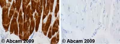 Immunohistochemistry (Formalin/PFA-fixed paraffin-embedded sections) - Anti-Cardiac Troponin I antibody [4C2] (ab10231)