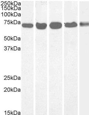 Western blot - Anti-DDX5 antibody (ab10261)