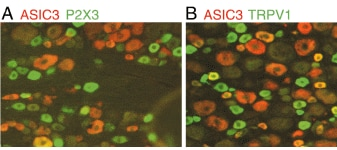 Immunohistochemistry (PFA perfusion fixed frozen sections) - Anti-P2X3 antibody (ab10269)