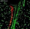 Immunohistochemistry (Frozen sections) - Anti-LYVE1 antibody (ab10278)