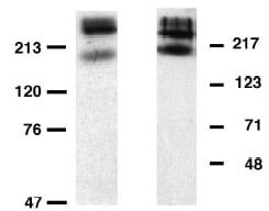 Western blot - Anti-Metabotropic Glutamate Receptor 6/MGLUR6 antibody (ab10314)