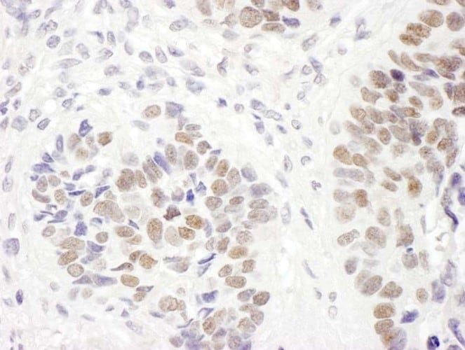 Immunohistochemistry (Formalin/PFA-fixed paraffin-embedded sections) - Anti-MSH6 antibody (ab10340)