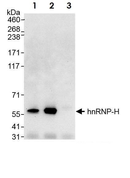 Immunoprecipitation - Anti-hnRNP H antibody (ab10374)