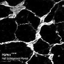 Immunohistochemistry (PFA perfusion fixed frozen sections) - Anti-PGP9.5 antibody - Neuronal Marker (ab10410)
