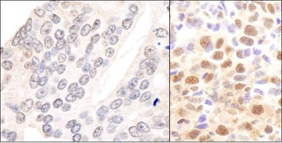 Immunohistochemistry (Formalin/PFA-fixed paraffin-embedded sections) - Anti-CSN2 antibody (ab10426)