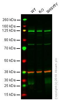 Western blot - Anti-BNIP3 antibody [ANa40] (ab10433)
