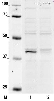 Western blot - Anti-CSNK2A1 antibody (ab10466)