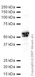 Western blot - Anti-Carbonic Anhydrase 9/CA9 antibody (ab10471)