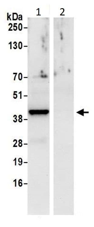 Immunoprecipitation - Anti-CSNK2A2 antibody (ab10474)