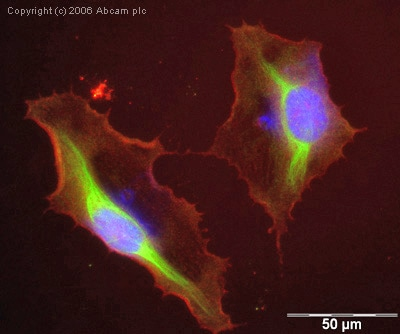 Immunocytochemistry/ Immunofluorescence - Anti-HPRT antibody (ab10479)