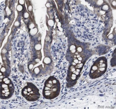Immunohistochemistry (Formalin/PFA-fixed paraffin-embedded sections) - Anti-HPRT antibody (ab10479)
