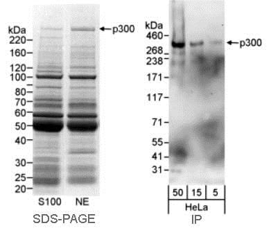 Immunoprecipitation - Anti-KAT3B / p300 antibody - ChIP Grade (ab10485)