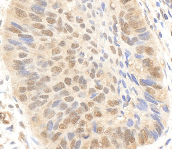 Immunohistochemistry (Formalin/PFA-fixed paraffin-embedded sections) - Anti-KAT3B / p300 antibody - ChIP Grade (ab10485)