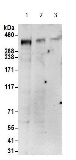 Western blot - Anti-CREBBP antibody (ab10489)