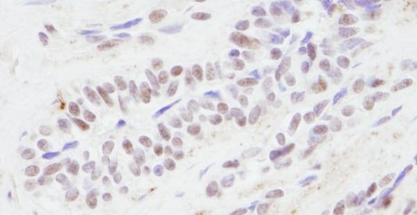 Immunohistochemistry (Formalin/PFA-fixed paraffin-embedded sections) - Anti-CREBBP antibody - ChIP Grade (ab10490)