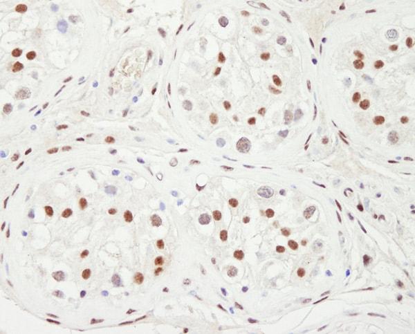 Immunohistochemistry (Formalin/PFA-fixed paraffin-embedded sections) - Anti-KAT13C / NCOA2 antibody (ab10508)
