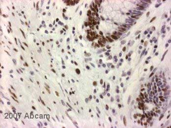 Immunohistochemistry (Formalin/PFA-fixed paraffin-embedded sections) - Anti-Nucleophosmin antibody [FC82291] (ab10530)