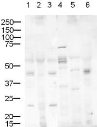 Western blot - Anti-DLL1 antibody (ab10554)
