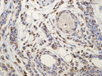 Immunohistochemistry (Formalin/PFA-fixed paraffin-embedded sections) - Anti-CD45 antibody (ab10558)